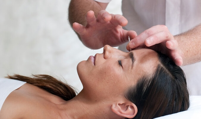 The Physical and Mental Health Benefits of Acupuncture